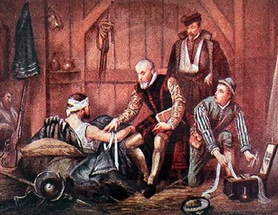 http://entodossitioscuecenhabas.files.wordpress.com/2011/02/4-blas-de-lezo-amputacion-de-pierna-brazo-tuerto-operaciones-medicas-en-barcos-siglo-xv-xvi-xvii-xviii-xix-medicina-medieval-barcos-medievales-medicos-antiguedad-galeones-galeras.jpg